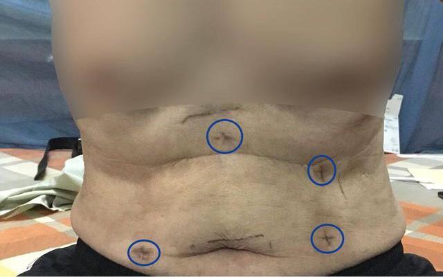 Cắt ung thư thực quản cho bệnh nhân bằng phương pháp nội soi hoàn toàn thay vì mổ mở ổ bụng