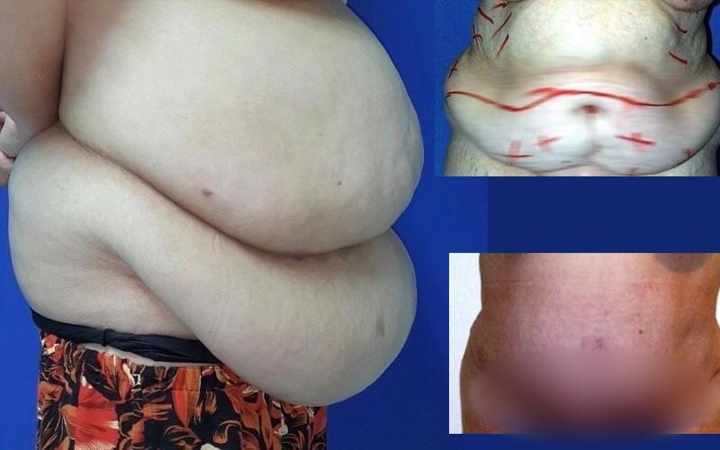 Hút 3,5 lít mỡ đặc, cắt 3kg da thừa vùng bụng, tạo hình thẩm mỹ cho nữ bệnh nhân nặng 90kg