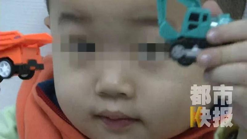 Bé trai 3 tuổi bị mù suốt 10 ngày chỉ vì bị cảm lạnh nhưng không điều trị dứt điểm - Ảnh 2.
