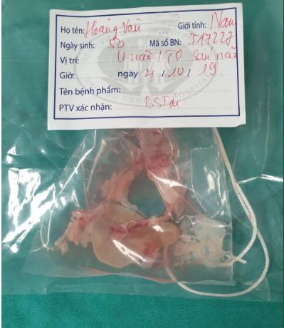 Ổ sán đươc phát hiện trong não bệnh nhân