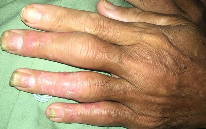 Chữa bệnh vảy nến theo thầy lang, bệnh nhân lãnh hậu quả nặng nề