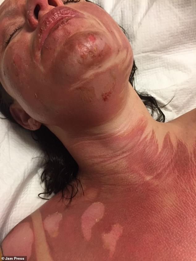 Đi ăn nướng BBQ tại nhà bạn, người phụ nữ bị bỏng khô khiến toàn thân bong trợt phải ghép da - Ảnh 5.