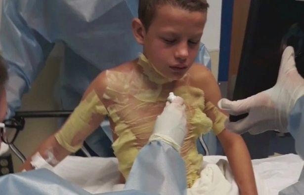 """Tẩm nước tẩy sơn móng tay lên người và châm lửa, cậu bé 12 tuổi bỏng nặng vì thực hiện theo """"thử thách lửa"""" trên mạng - Ảnh 1."""