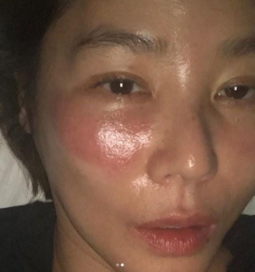 Mỹ nữ xứ Hàn bị bỏng rát mặt chỉ vì một lần đắp mặt nạ qua đêm: Lời cảnh báo thói quen làm đẹp chị em cần chấn chỉnh! - Ảnh 1.
