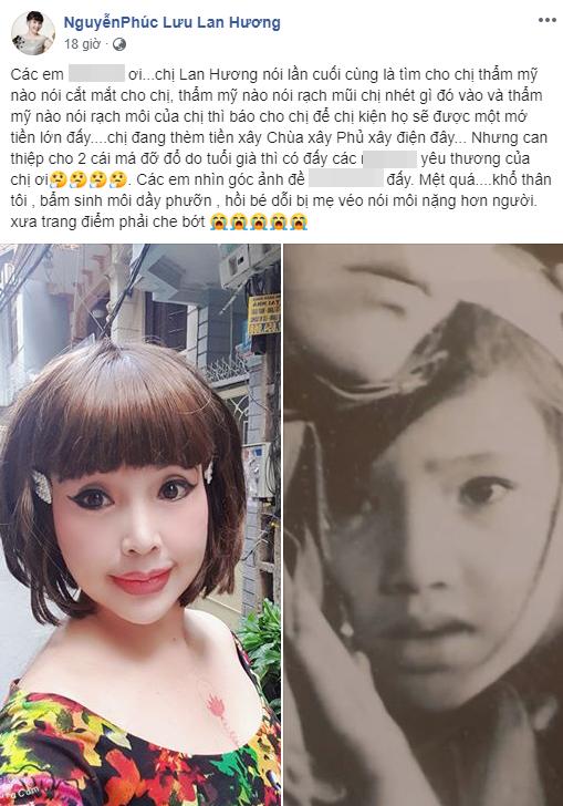 """""""Em bé Hà Nội"""" Lan Hương sau nhiều lần gay gắt chối bỏ đã bất ngờ thừa nhận có """"can thiệp"""" trên gương mặt - Ảnh 3."""