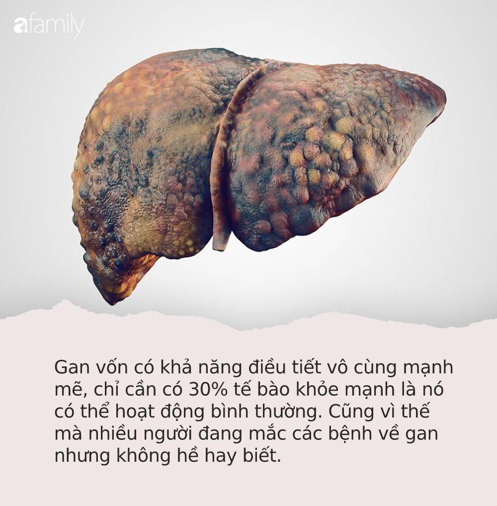 """Hãy để ý triệu chứng """"3 đen 2 hôi"""" trên cơ thể, báo hiệu bạn đã mắc các bệnh về gan cần đi khám gấp - Ảnh 1."""