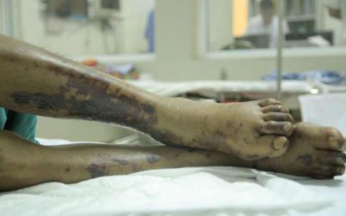 Làm nghề bán thịt lợn, người đàn ông  Vĩnh Long nhập viện với chẩn đoán viêm màng não do liên cầu khuẩn
