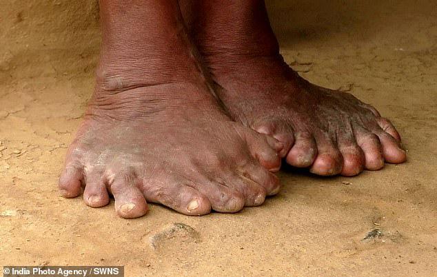 Người phụ nữ 63 tuổi sinh ra với 19 ngón chân và 12 ngón tay, cả đời bị dân làng xa lánh hắt hủi vì tưởng bà là phù thủy - Ảnh 6.