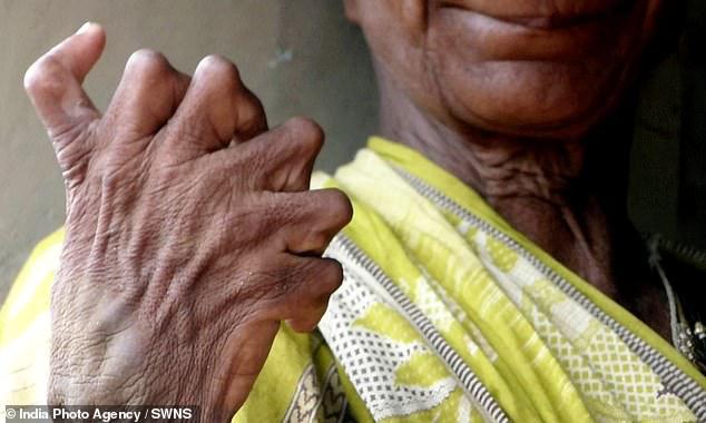Người phụ nữ 63 tuổi sinh ra với 19 ngón chân và 12 ngón tay, cả đời bị dân làng xa lánh hắt hủi vì tưởng bà là phù thủy - Ảnh 3.