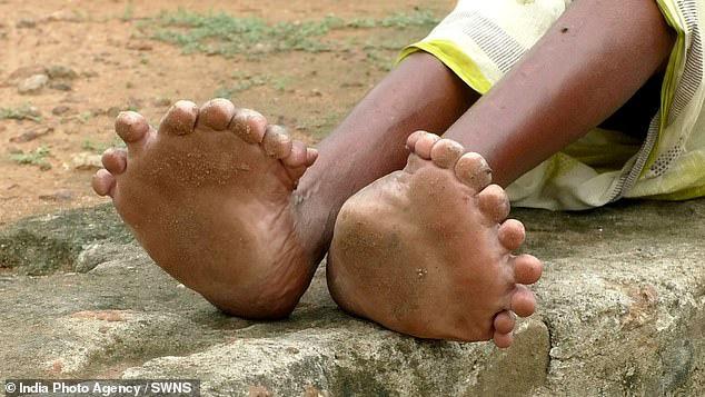 Người phụ nữ 63 tuổi sinh ra với 19 ngón chân và 12 ngón tay, cả đời bị dân làng xa lánh hắt hủi vì tưởng bà là phù thủy - Ảnh 5.