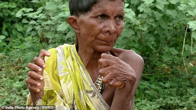 Người phụ nữ 63 tuổi sinh ra với 19 ngón chân và 12 ngón tay, cả đời bị dân làng xa lánh hắt hủi vì tưởng bà là phù thủy - Ảnh 1.