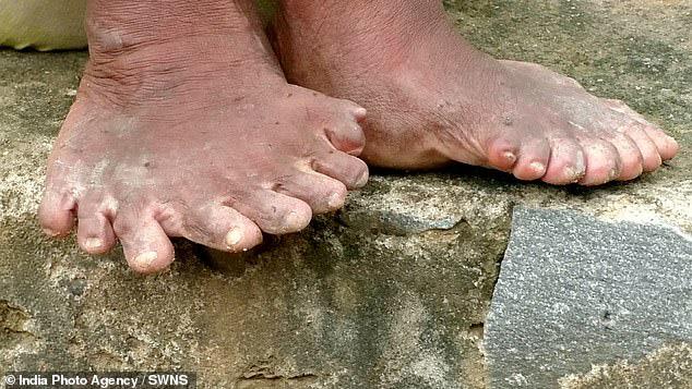 Người phụ nữ 63 tuổi sinh ra với 19 ngón chân và 12 ngón tay, cả đời bị dân làng xa lánh hắt hủi vì tưởng bà là phù thủy - Ảnh 2.