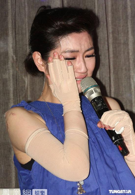 Những nghề nghiệp của giới nghệ sĩ: Cao Dĩ Tường đột tử, Selina (S.H.E) cháy phỏng mặt, Onew (SHINee) suýt mất mạng - Ảnh 9.