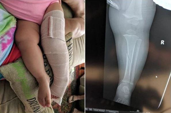 Những tai nạn thương tâm khi trẻ chơi cầu trượt, cha mẹ tuyệt đối không nên lơ là - Ảnh 6.