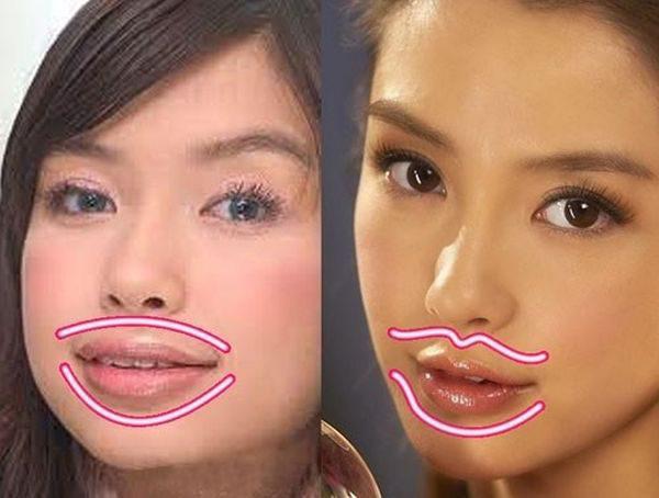 """Tạo hình môi: Chuyên gia """"bật mí"""" những phương pháp thẩm mỹ hot nhất hiện nay - Ảnh 7."""
