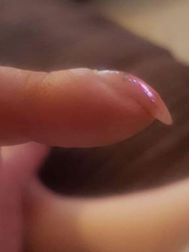 Bài kiểm tra đơn giản với móng tay giúp nhận biết sớm dấu hiệu ung thư phổi - Ảnh 3.