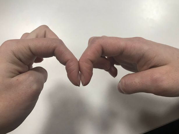 Bài kiểm tra đơn giản với móng tay giúp nhận biết sớm dấu hiệu ung thư phổi - Ảnh 1.