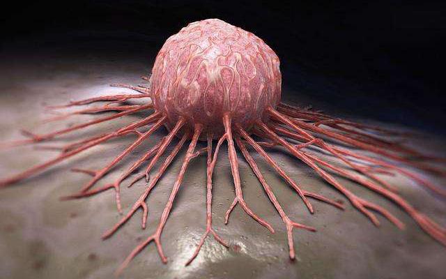 Dù đã được điều trị, tế bào ung thư vẫn có thể phát triển rầm rộ trở lại vì 3 lý do này