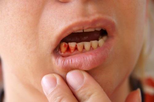 Hôi miệng không chỉ do ăn đồ nặng mùi, nó còn là dấu hiệu cảnh báo bạn đã mắc 5 căn bệnh nguy hiểm này - Ảnh 3.