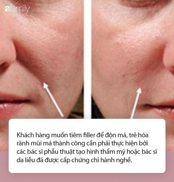Nhiều người gặp biến chứng do tiêm filler trẻ hóa khuôn mặt, chuyên gia cảnh báo cần hết sức cẩn trọng - Ảnh 2.