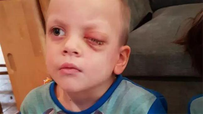 Nhờ dấu hiệu lạ trong tấm ảnh chụp con trai, cha mẹ đau đớn khi biết điều khủng khiếp sắp xảy đến với bé - Ảnh 6.