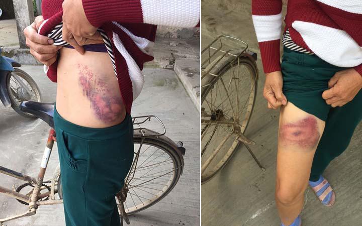 Phú Thọ: Cô ruột tố bị cháu trai hành hung dẫn đến sang chấn, suy sụp trong ngày xây mộ cho bố