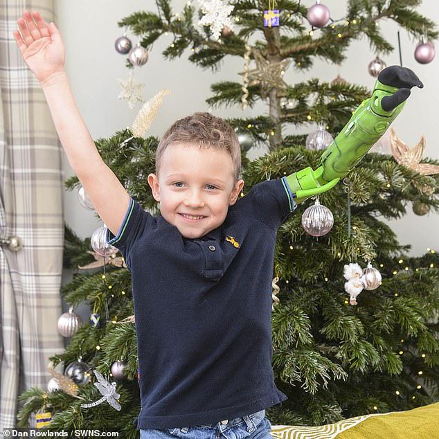 Bị dị tật bẩm sinh ở chi, bé trai 5 tuổi đã vỡ òa trong cảm xúc khi lần đầu tiên được ôm trọn vẹn em trai vào lòng  - Ảnh 4.