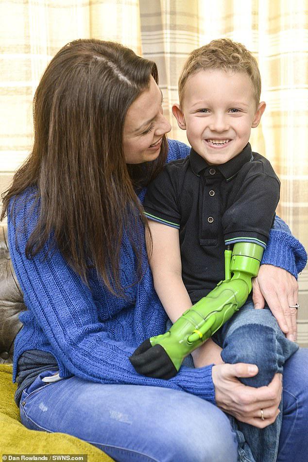 Bị dị tật bẩm sinh ở chi, bé trai 5 tuổi đã vỡ òa trong cảm xúc khi lần đầu tiên được ôm trọn vẹn em trai vào lòng  - Ảnh 7.