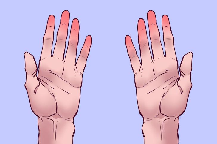 Dùng 1 túi đá trong 30s, bạn sẽ biết ngay tình hình sức khỏe tim mạch của mình và sớm phòng tránh đột quỵ - Ảnh 3.