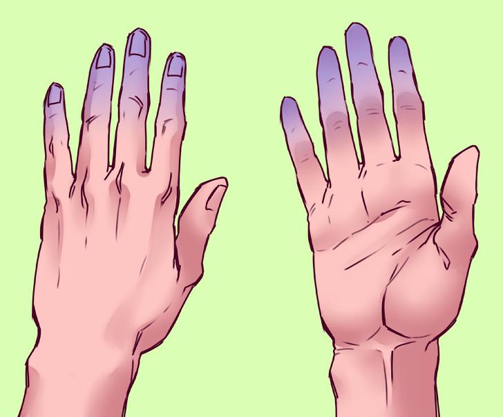 Dùng 1 túi đá trong 30s, bạn sẽ biết ngay tình hình sức khỏe tim mạch của mình và sớm phòng tránh đột quỵ - Ảnh 4.