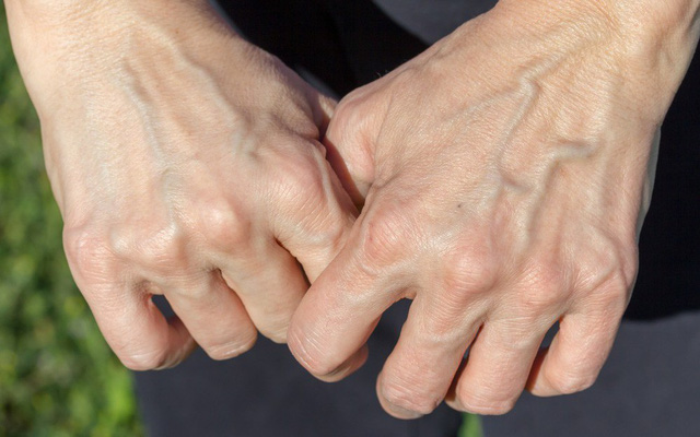 Có 3 triệu chứng này xuất hiện trên bàn tay chứng tỏ gan đang kêu cứu - Ảnh 6.