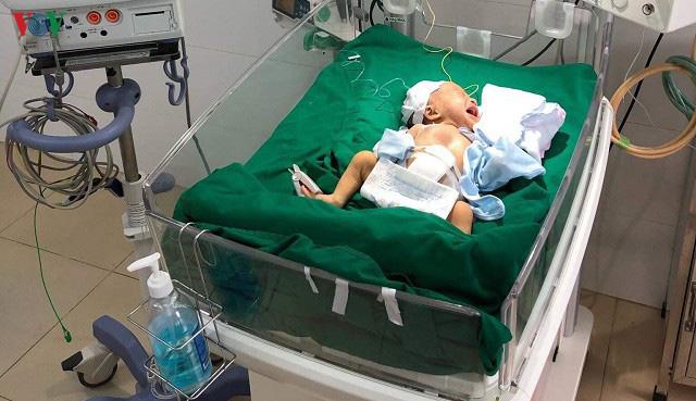 Cứu sống em bé bị dị tật bẩm sinh khiến toàn bộ nội tạng lòi ra ngoài - Ảnh 2.