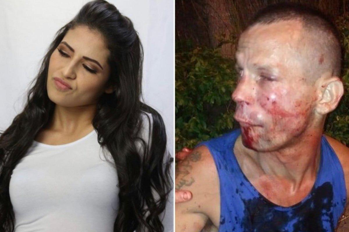 Cướp nhầm nữ đô vật UFC xinh đẹp, tên trộm đen đủi bị đánh cho bầm dập mặt mũi phải cầu cứu cảnh sát - Ảnh 1.