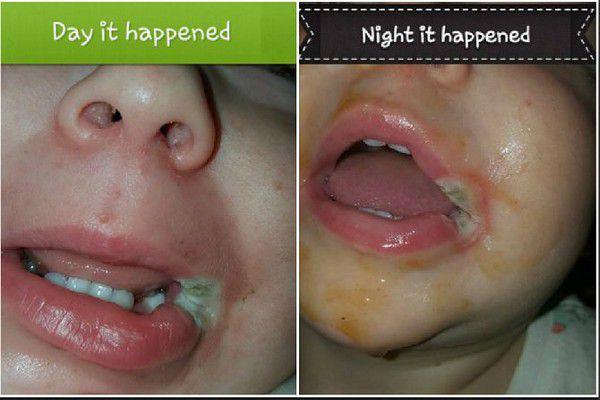 Dùng sạc điện thoại xong không rút điện, bé 2 tuổi ngậm đầu sạc bị giật rách khoang miệng, tổn thương amidan - Ảnh 5.