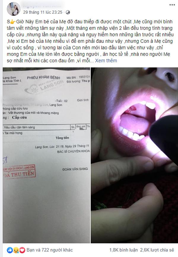 Dùng sạc điện thoại xong không rút điện, bé 2 tuổi ngậm đầu sạc bị giật rách khoang miệng, tổn thương amidan - Ảnh 1.
