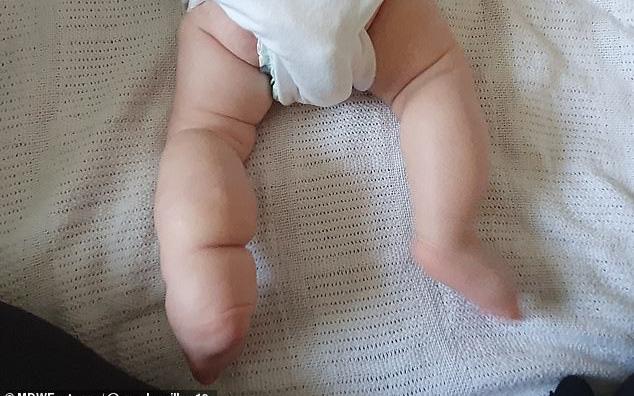 Nhìn đôi chân bất thường của bé gái 2 tuần tuổi, bác sĩ quay sang hỏi: Có ai bị lở miệng hôn con không?