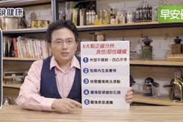 Bác sĩ chỉ ra 5 cách tự phân biệt khối u lành tính và ác tính - Ảnh 1.