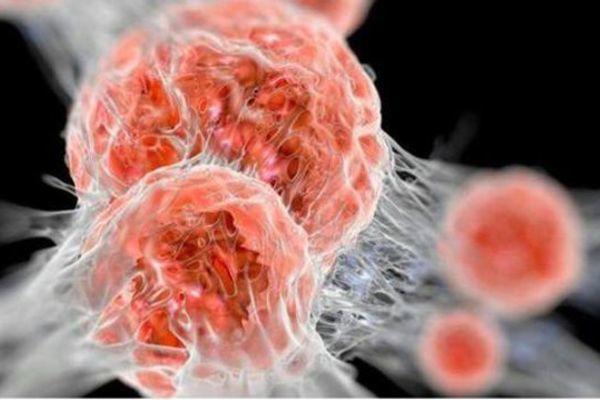 Bác sĩ chỉ ra 5 cách tự phân biệt khối u lành tính và ác tính - Ảnh 2.