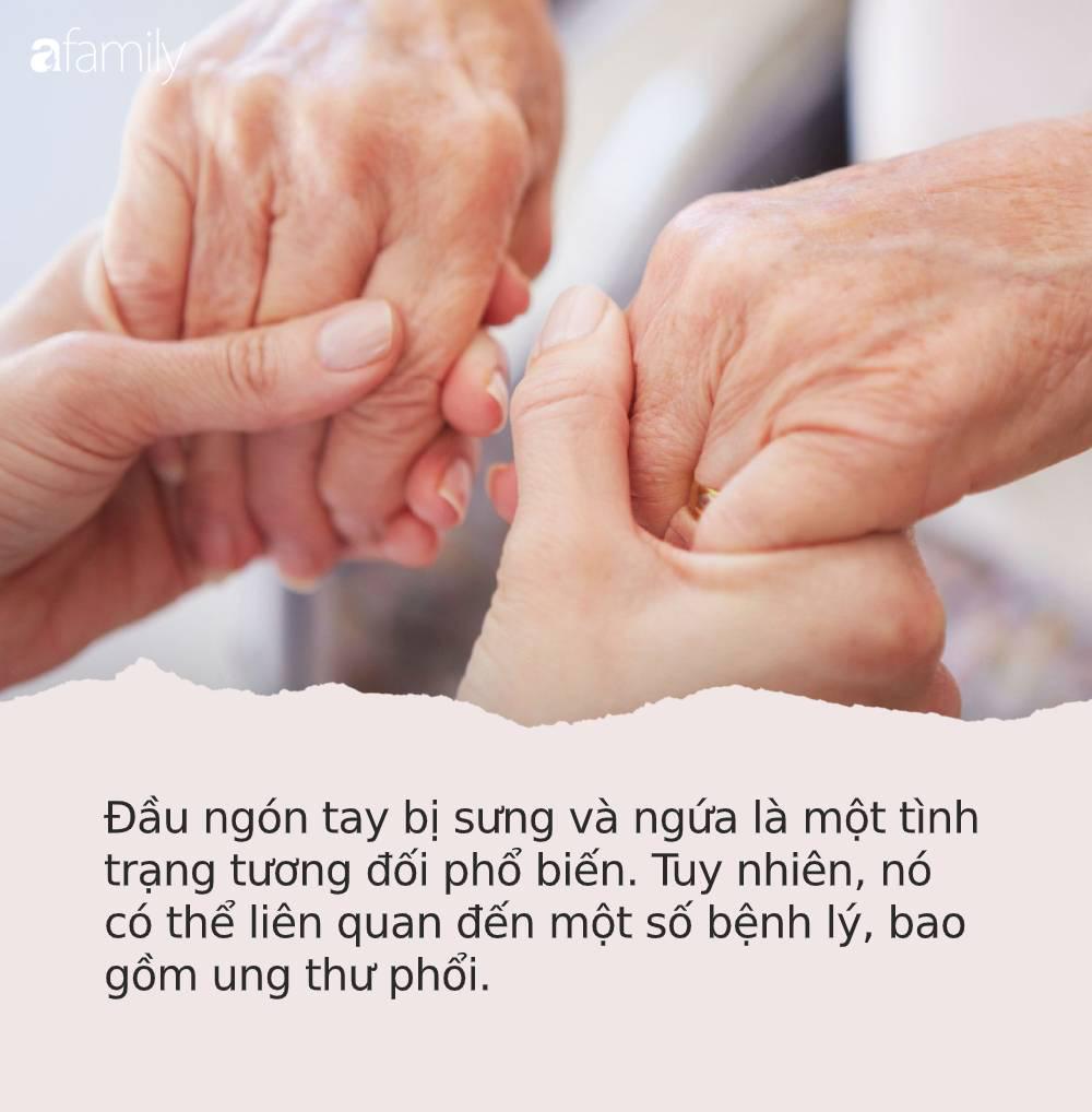 """Những dấu hiệu """"nhìn là thấy"""" của bệnh ung thư ác tính trên bàn tay và bàn chân rất nhiều người bỏ qua - Ảnh 1."""