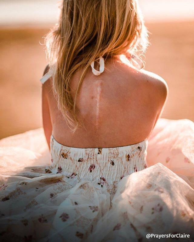 Con gái khóc lóc đòi che đi vết sẹo do ung thư, người mẹ chỉ nói một câu khiến ai nấy cũng đều cảm động - Ảnh 6.