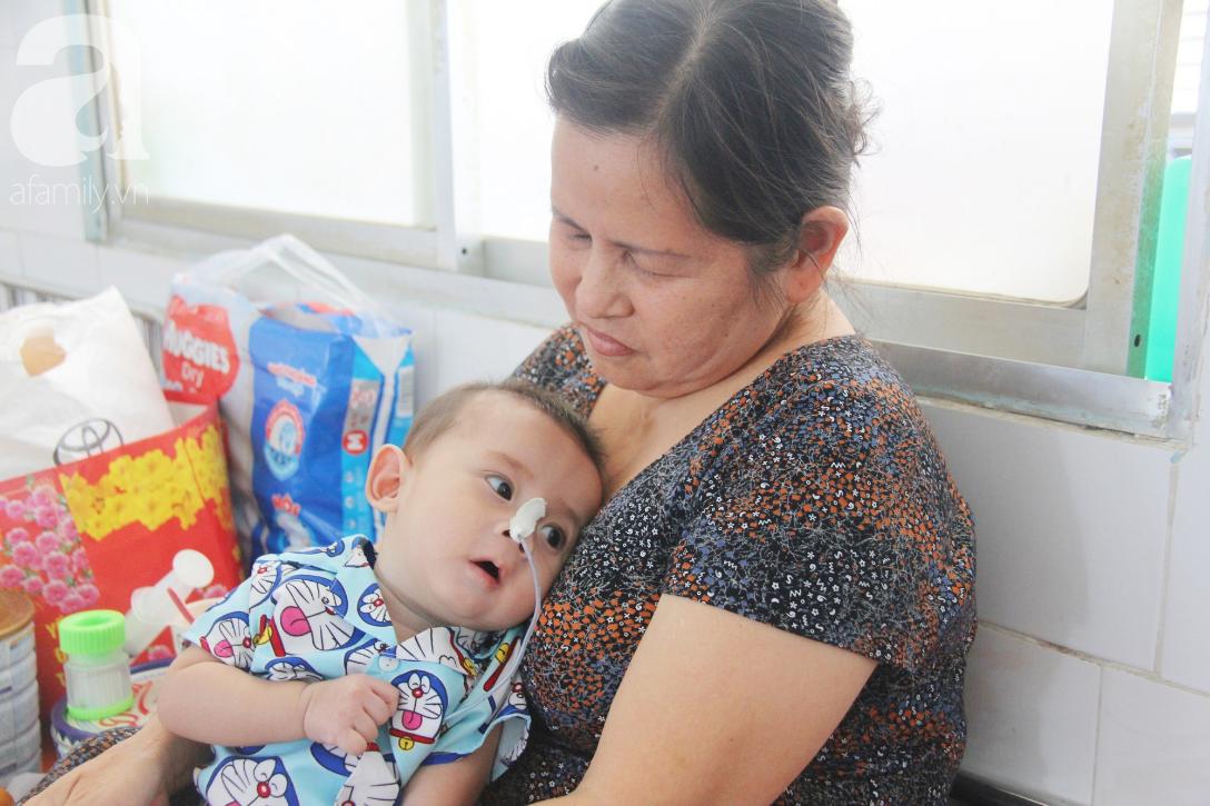 Ánh mắt cầu cứu của bé trai 7 tháng tuổi bị mẹ bỏ rơi trước cổng chùa vì mắc bệnh bại não - Ảnh 1.
