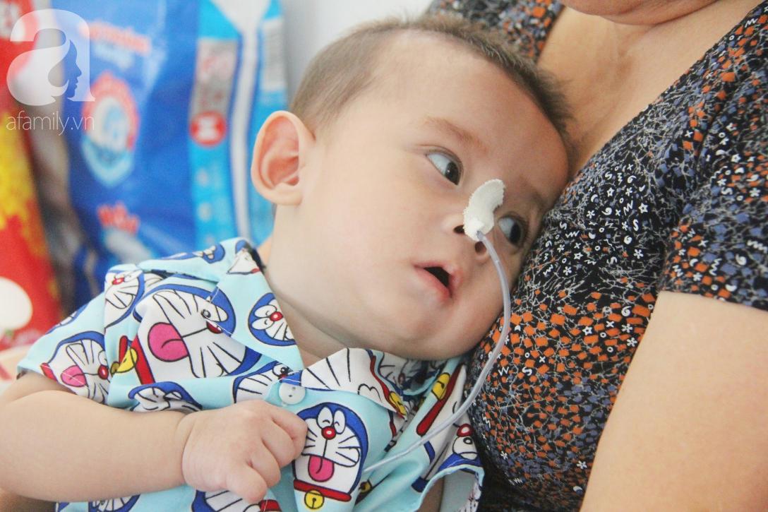 Ánh mắt cầu cứu của bé trai 7 tháng tuổi bị mẹ bỏ rơi trước cổng chùa vì mắc bệnh bại não - Ảnh 5.