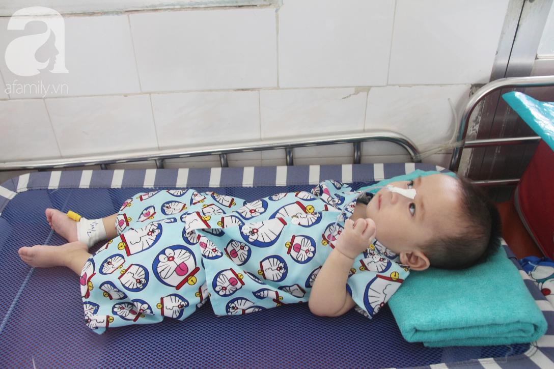Ánh mắt cầu cứu của bé trai 7 tháng tuổi bị mẹ bỏ rơi trước cổng chùa vì mắc bệnh bại não - Ảnh 6.
