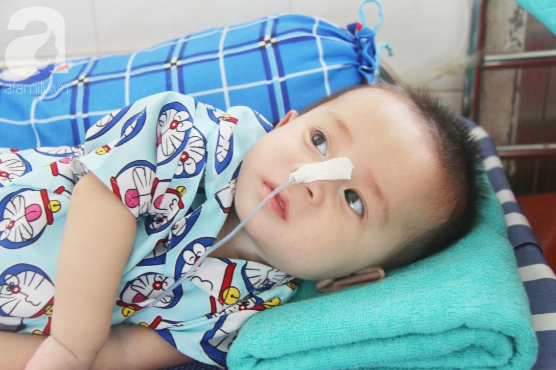 Ánh mắt cầu cứu của bé trai 7 tháng tuổi bị mẹ bỏ rơi trước cổng chùa vì mắc bệnh bại não - Ảnh 2.