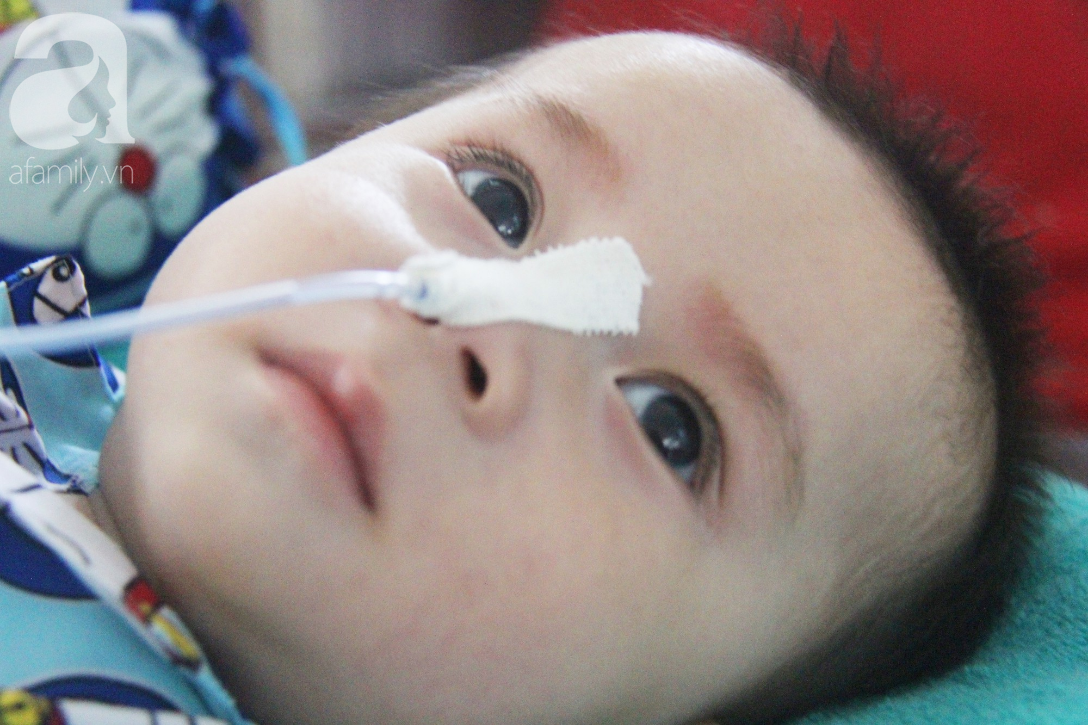 Ánh mắt cầu cứu của bé trai 7 tháng tuổi bị mẹ bỏ rơi trước cổng chùa vì mắc bệnh bại não - Ảnh 3.