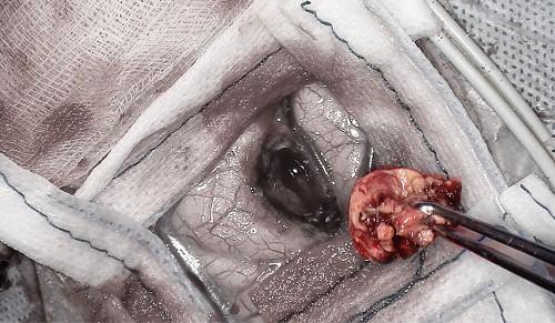 Mổ u não bằng robot chỉ mất 90 phút- Lần đầu tiên tại châu Á, Bệnh viện Việt Nam làm được điều này - Ảnh 2.