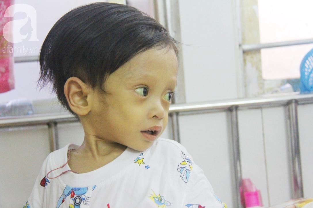 Gần 1,5 tỷ đồng giúp đỡ bé trai 19 tháng bị xơ gan, bụng to như cái trống có cơ hội đi nước ngoài chữa bệnh - Ảnh 3.