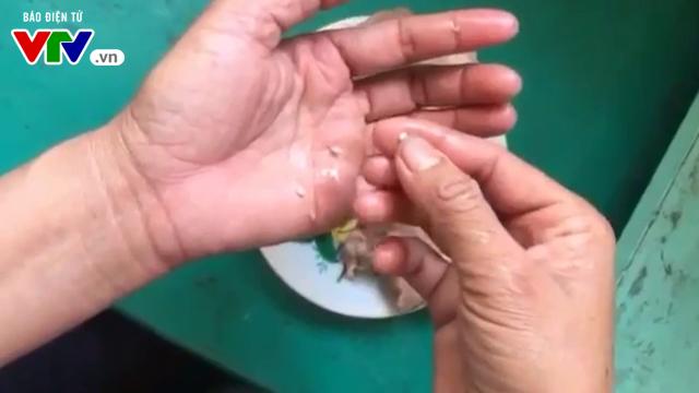 Cận cảnh thịt lợn nhiễm sán mà trường mầm non ở Bắc Ninh cho trẻ ăn - Ảnh 4.