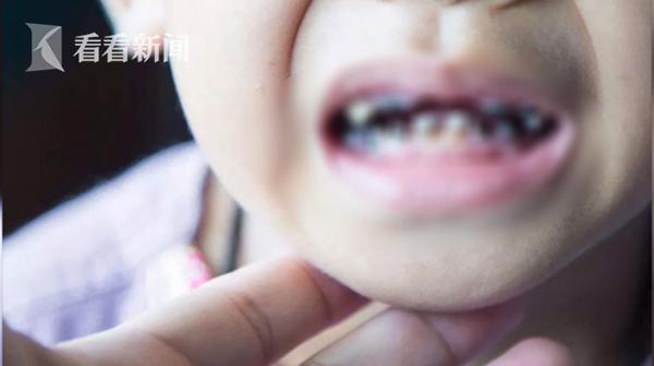 Chính sai lầm không đáng có này của cha mẹ mà khiến toàn bộ hàm răng của con bị hư hại nghiêm trọng - Ảnh 1.
