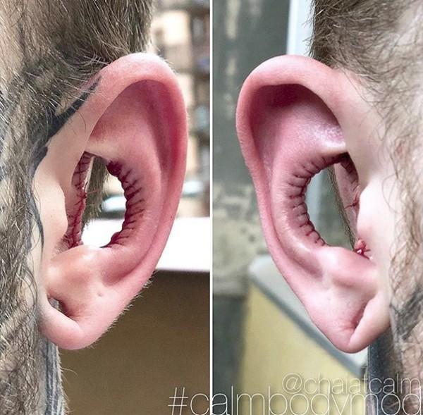 Rùng rợn người đàn ông tiến hành phẫu thuật cắt bỏ tai trong vì muốn thay đổi cơ thể theo ý muốn - Ảnh 1.